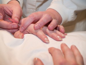 Acupuncture_hand_treatment