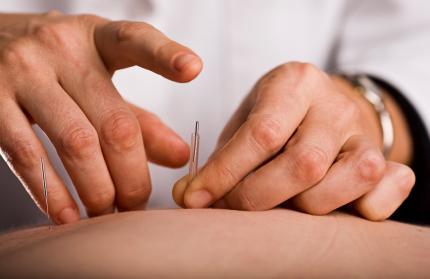 Acupuncturist prepares to tap needle into patient