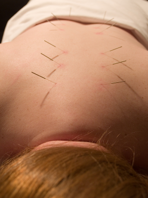 Back Pain and Acupuncture