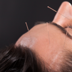 Acupuncture can help relieve migraine headache pain