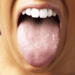 Tongues are utilized for diagnosis in Traditional Chinese Medicine