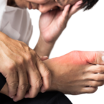 Traditional Chinese Medicine helps with gout